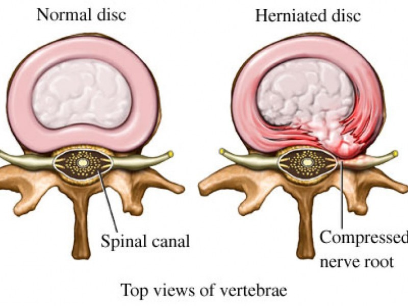 Intervertebral Disk Pathology
