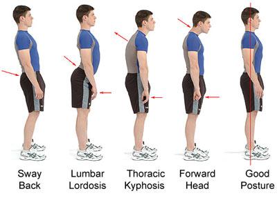 posturepic